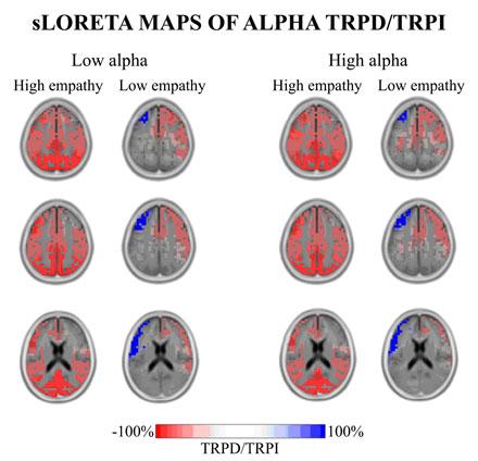 Musica cervelli sincronizzati ed empatia uno studio per - Neuroni specchio empatia ...